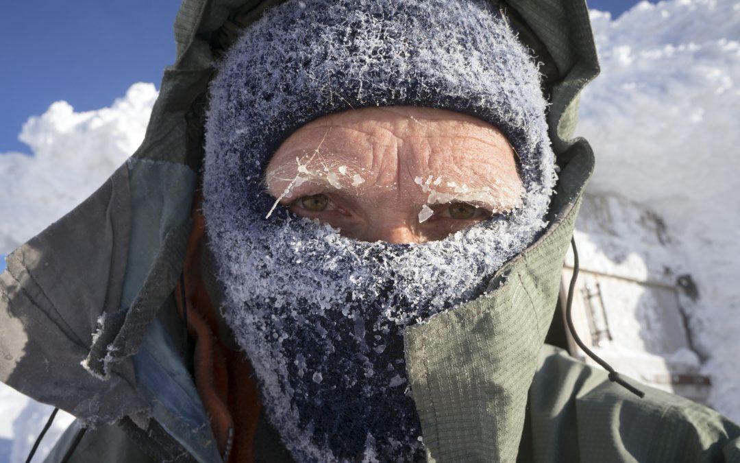 Understanding Frostbite